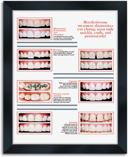 Dental Wall Art | SmartPractice Dental